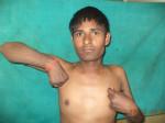 Brachial Plexus Surgery