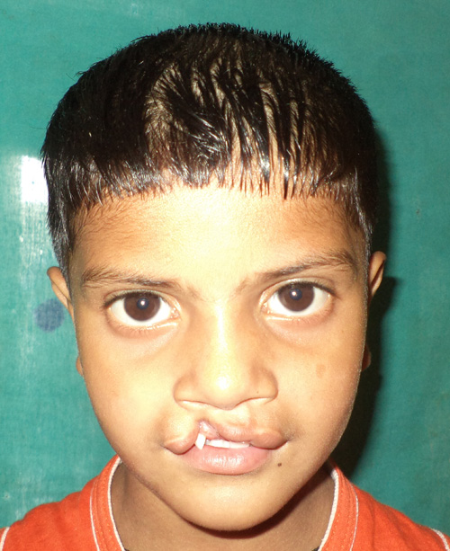 Cleft, Lip & Palate