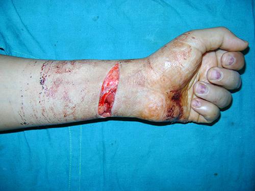 Micro Vascular Surgery