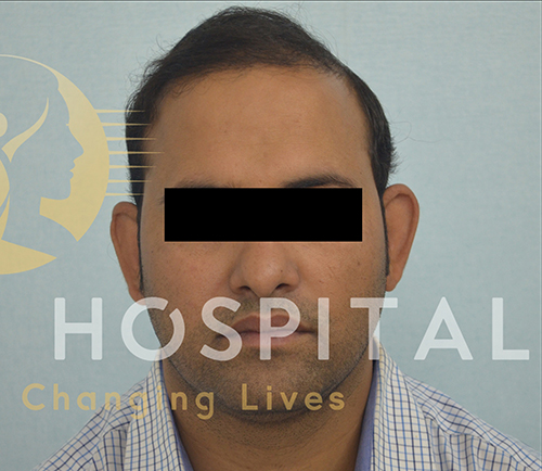 Hair Transplant Before and After Results in India