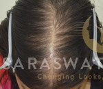 Mesotherapy for Hair loss