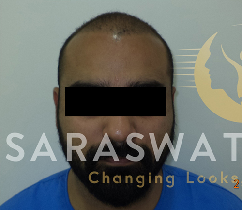 Hair Transplant Results in India