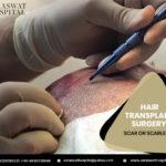 hair-transplant-surgery
