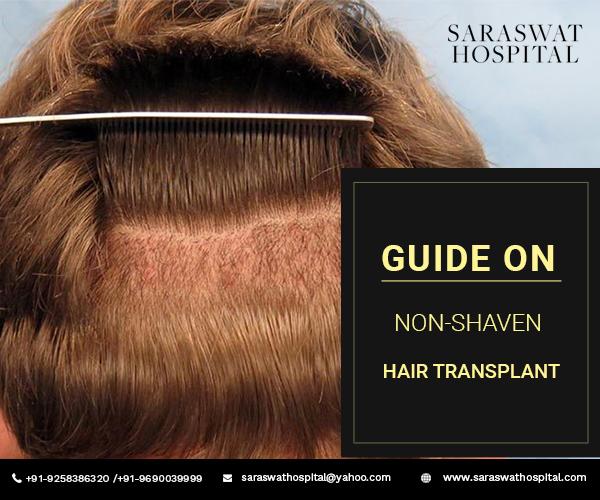 non-shaven-hair-transplant