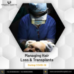 How to Manage Hair Loss & Transplants during COVID-19