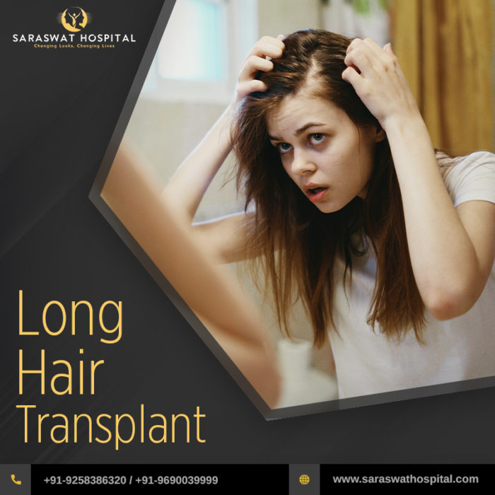 Know About Long Hair Transplant