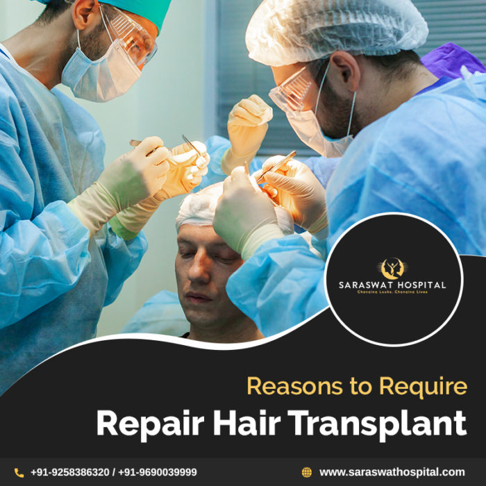 Why Does One Require Repair Hair Transplant