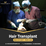 Hair Transplant Recovery Period