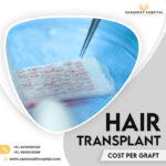 Hair Transplant Cost Per Graft India