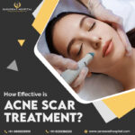 Acne scar treatment in Agra