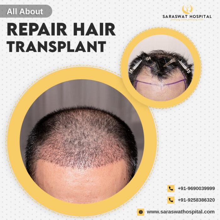 Repair Hair Transplant in India