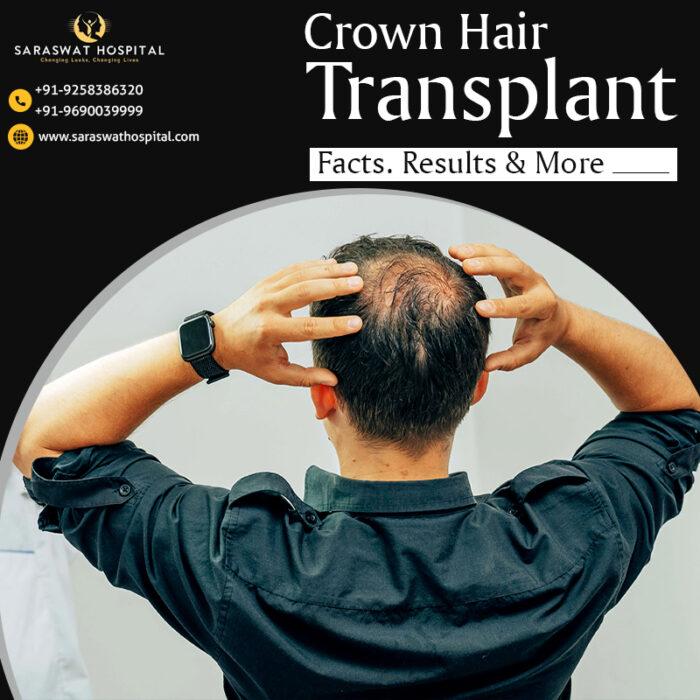 Crown Hair Loss Treatment in Agra