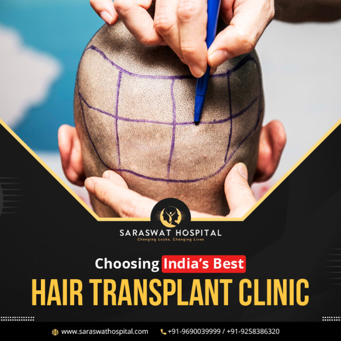 How to Choose the Best Hair Transplant Clinic in India