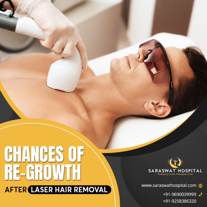 Chance of Re-growth after Laser Hair Removal
