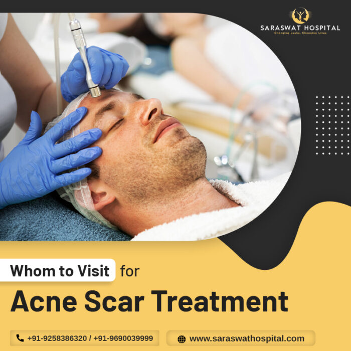 Acne scar treatment in Agra