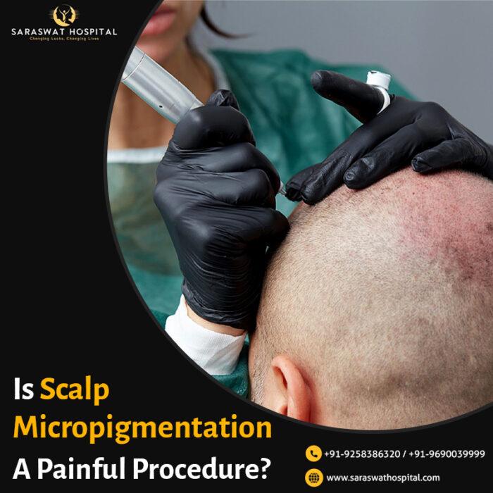 Scalp Micropigmentation in India