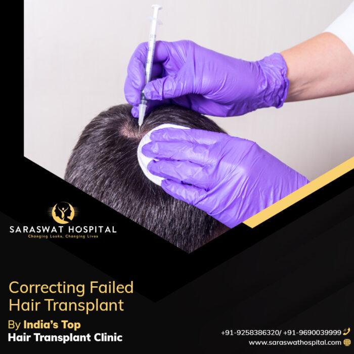 Hair Transplant Clinic in India Correct a Failed Hair Transplant