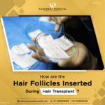 How are the Hair Follicles Inserted During Hair Transplant India