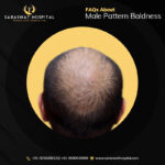 Male Pattern Baldness FAQ's