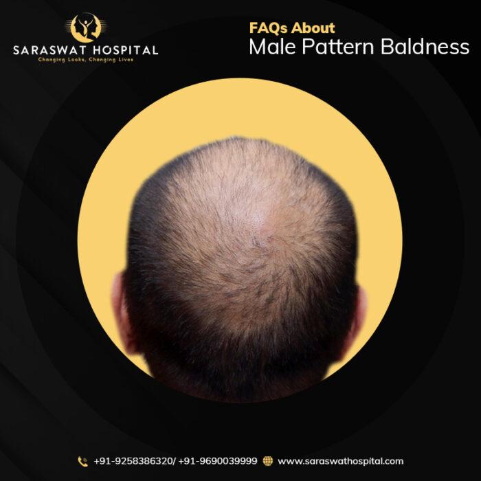 Male Pattern Baldness FAQ's