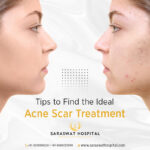 Find the Best Acne Scar Treatment for Yourself