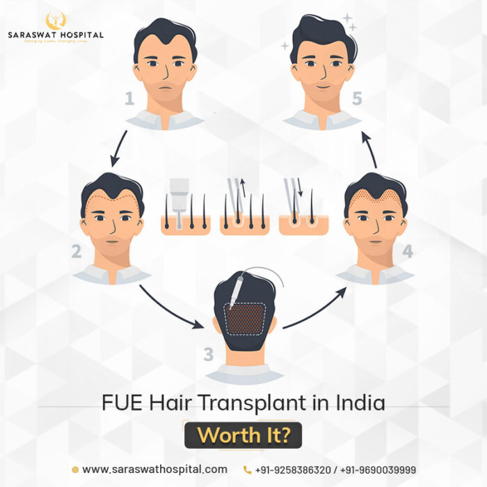 Is Undergoing FUE Hair Transplant in India Worth It