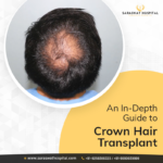 Crown Hair Transplant Surgery in India