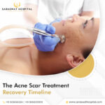 Acne Scars Treatment in Agra