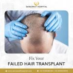Fix your Failed Hair Transplant