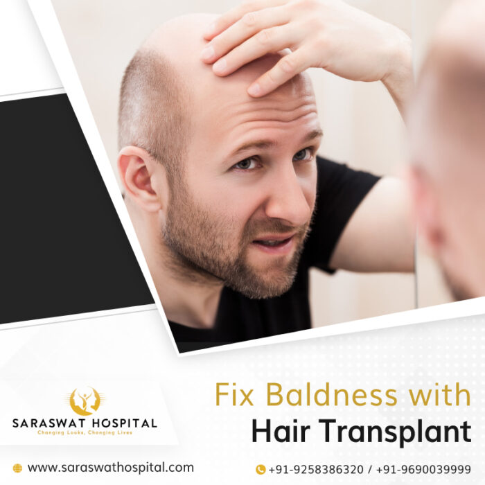 How a Hair Transplant Surgery Fixes Baldness