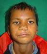 Cleft Lip Surgery in Agra