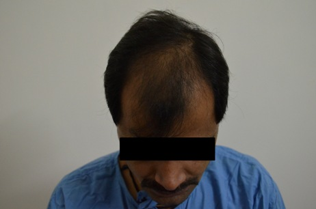 After FUE Hair Transplant