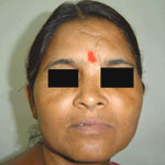 Rhinoplasty in Agra