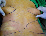 Liposuction Agra