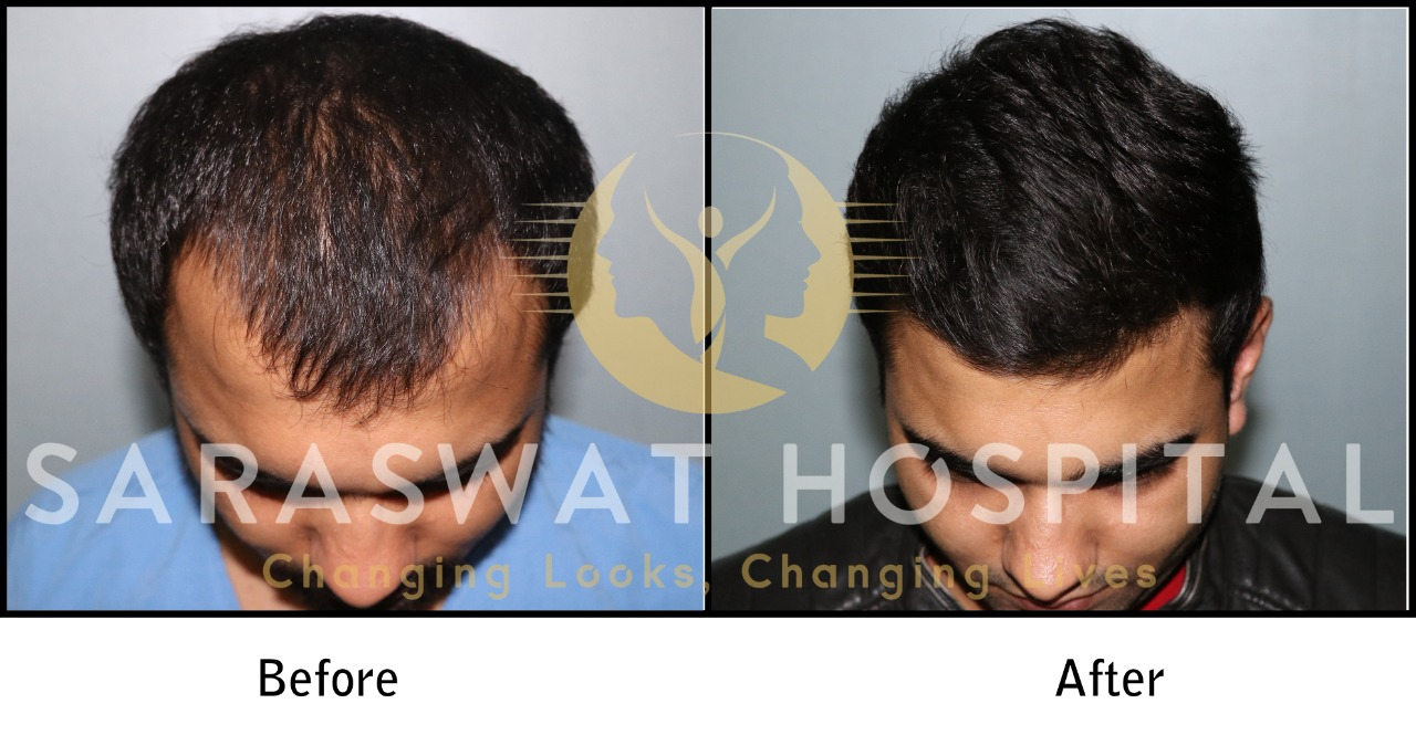FUE Hair Transplant Results in Agra