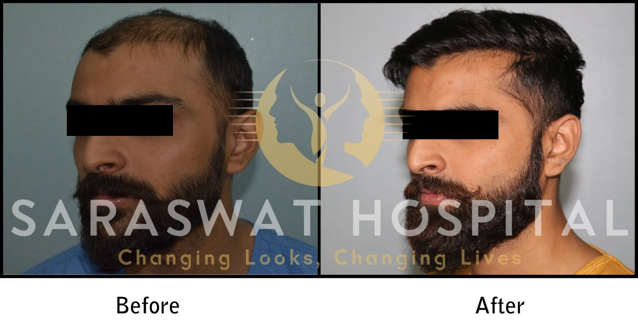 FUE Hair Transplant Results in India